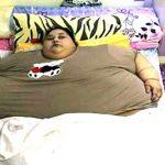 दुनिया की सबसे मोटी महिला को किया जा रहा पतला