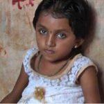 गरीबी के कारण मासूम बच्ची का नहीं हो पा रहा है इलाज, जानिए खबर